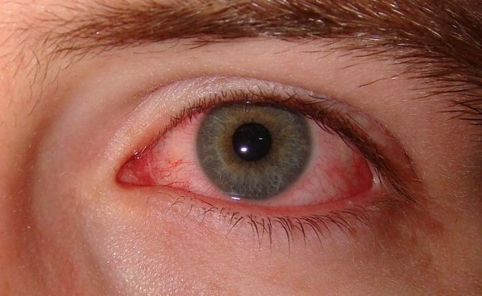 Неприятности от контактных линз