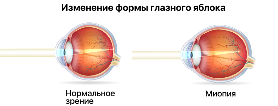 Изменение формы глазного яблока при близорукости