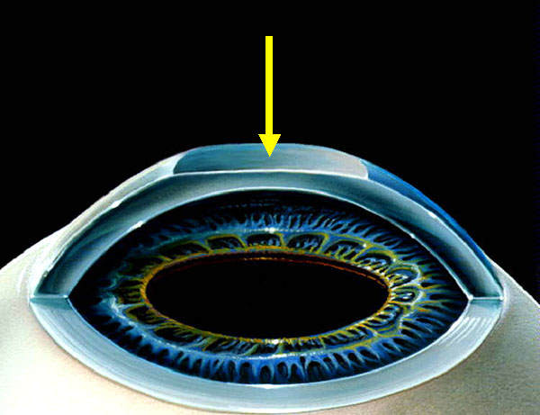 Принцип первого типа лазерной коррекции – ФРК