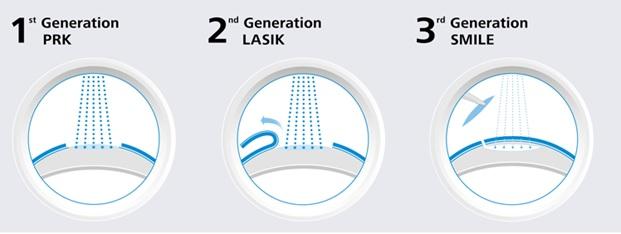 Поколения лазерной коррекции