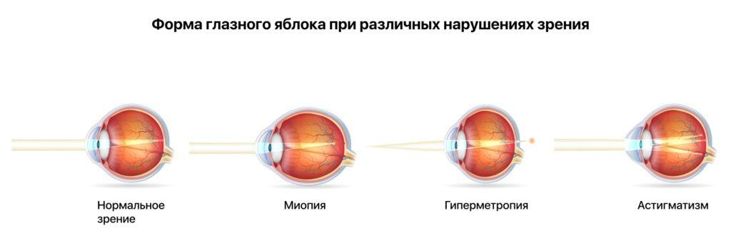 Форма глазного яблока при близорукости и других нарушениях зрения