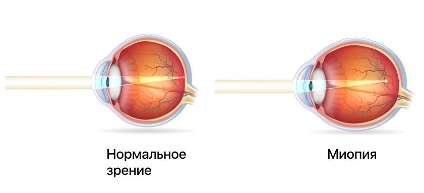 Изменение формы глазного яблока при миопии
